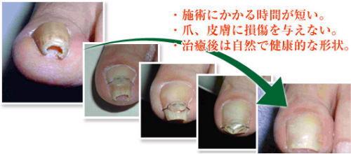 巻き爪のの治療経過