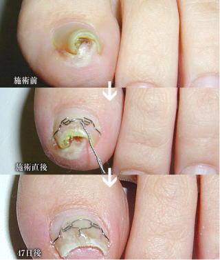 巻き爪の治療経過2