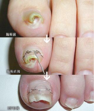 巻き爪の治療経過3